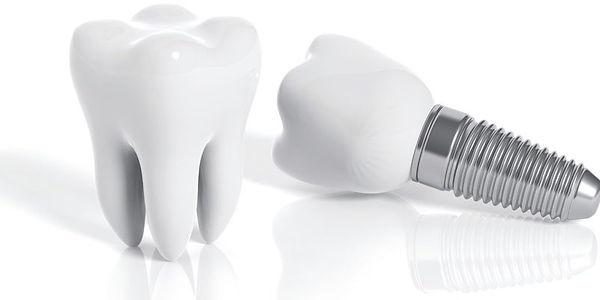implante-800x400.jpg