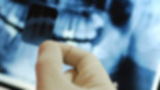 Radiographie numérique dentiste Paris 12 Magali Llopis