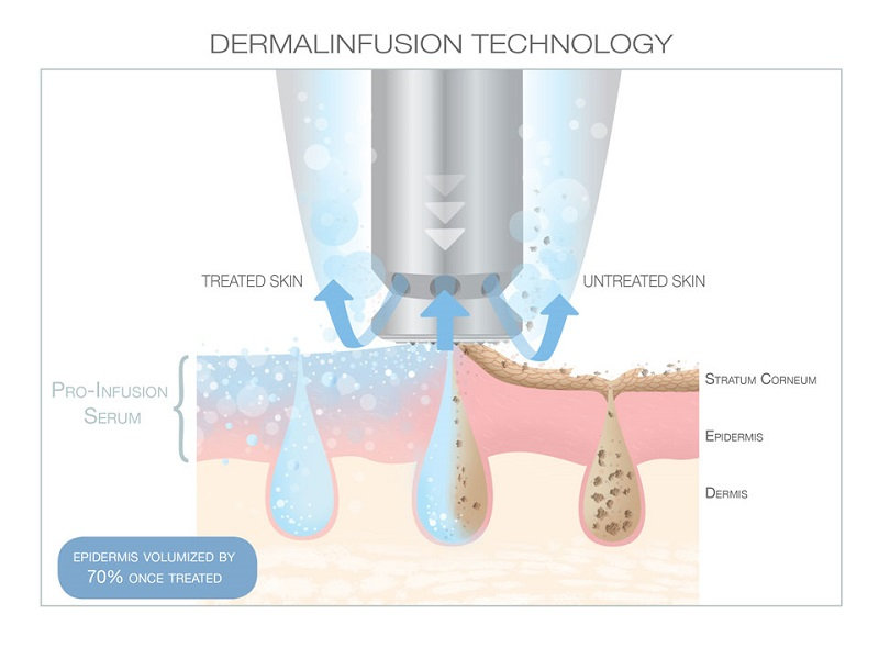 Demal Infusion Treatment