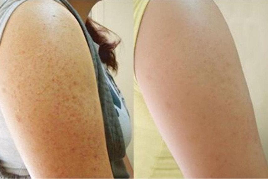種新肌嫩膚術(半背/半臂)