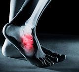 Functional Feet