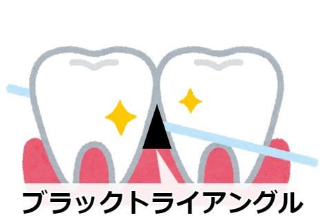 下の前歯にできやすいブラックトライアングル!