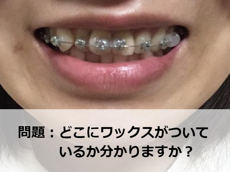 オーソシルワックスを装着した歯