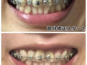 歯並びを自力で治すのは無理!費用を抑えて歯並びをよくする方法