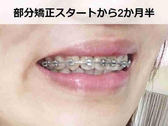 分かりにくいですが前歯の側面を削りました