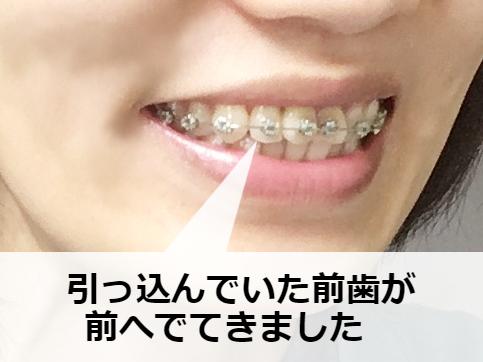 プチ矯正中の横顔(歯並び)