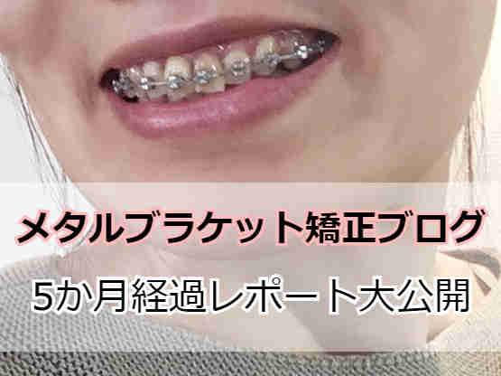 メタルブラケットで矯正中の歯