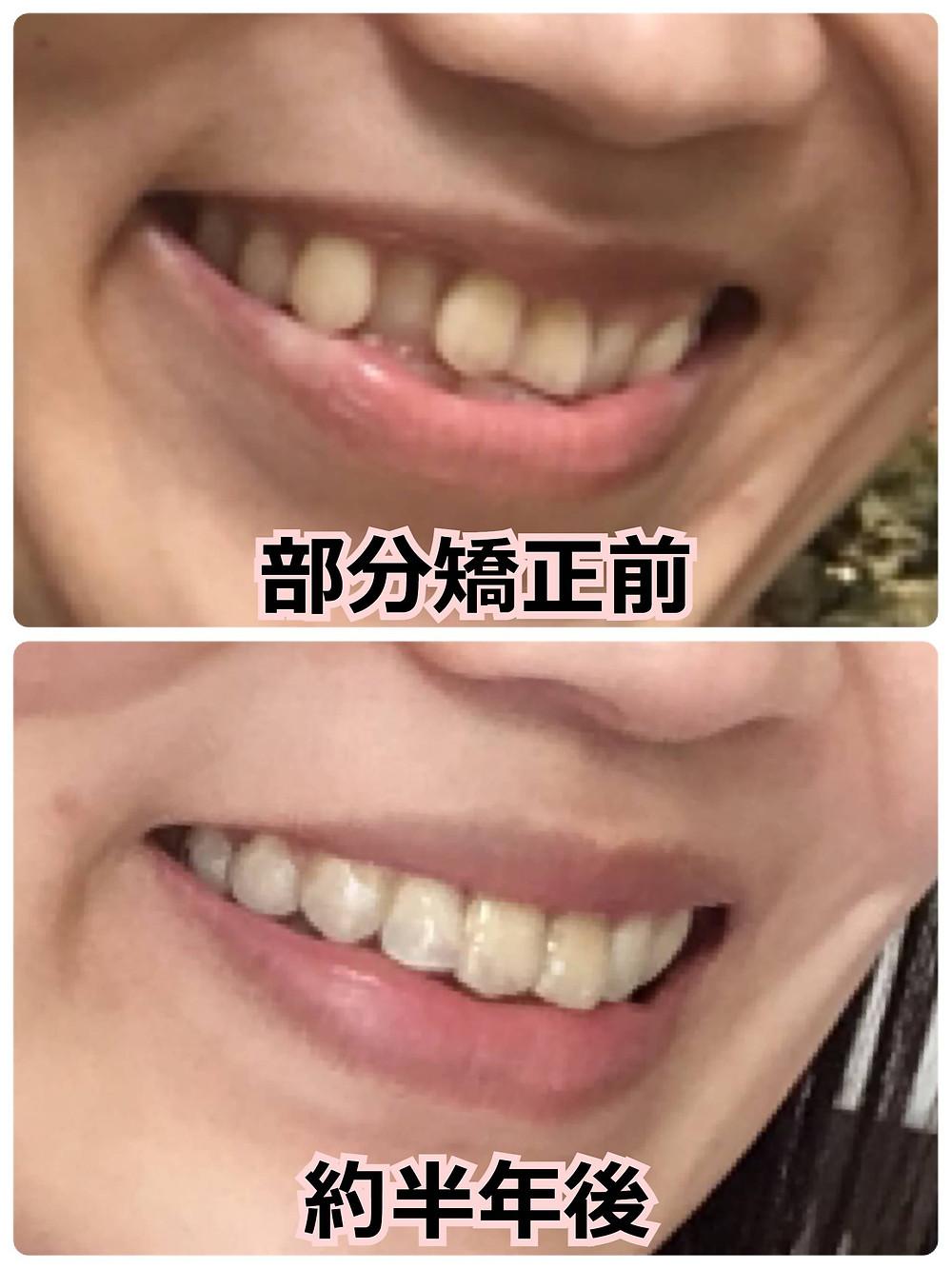 部分矯正開始から半年経過した八重歯