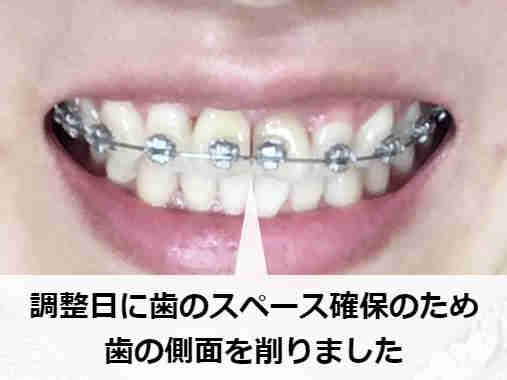 歯列矯正における調整日(スライス後)