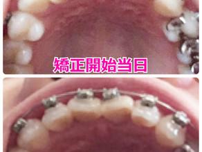 矯正ブログ 抜かない歯列矯正でどれだけ変わる?【レポ】