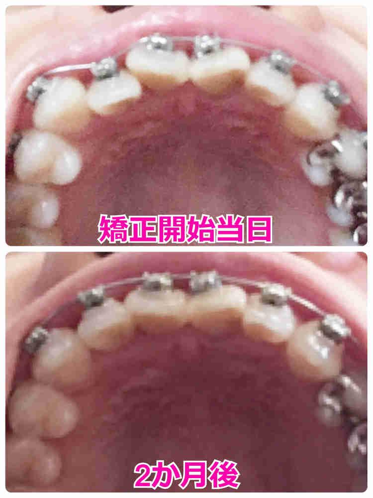 歯を抜かずに矯正して2か月経過 ビフォーアフター写真