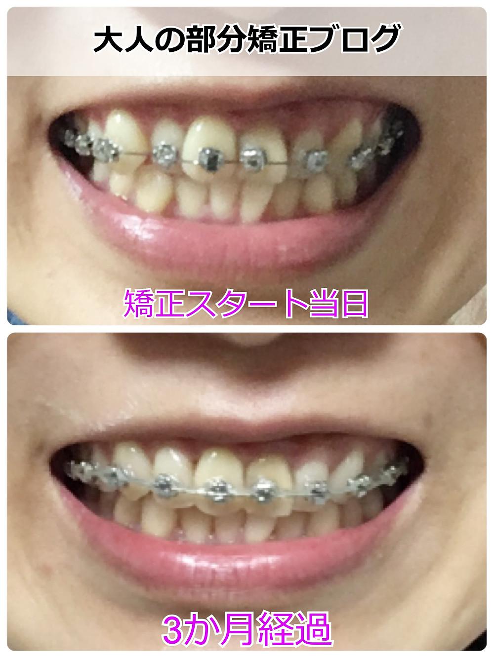 八重歯の部分矯正を始めて3か月後の歯並び【正面】