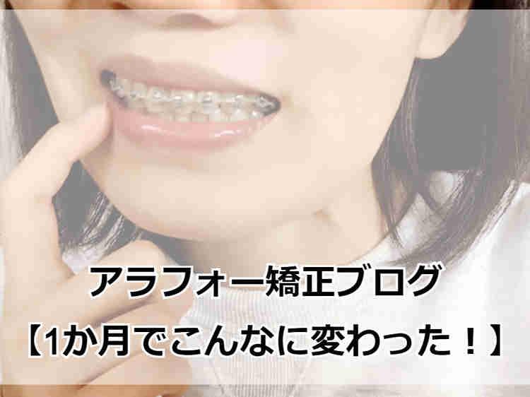 部分矯正から2か月が経過した前歯