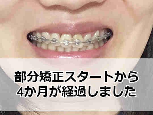 大人の部分虚勢ブログ 4か月経過した歯並び