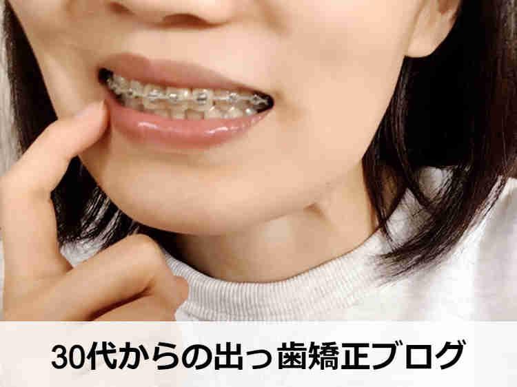 出っ歯の部分矯正中の30代女子