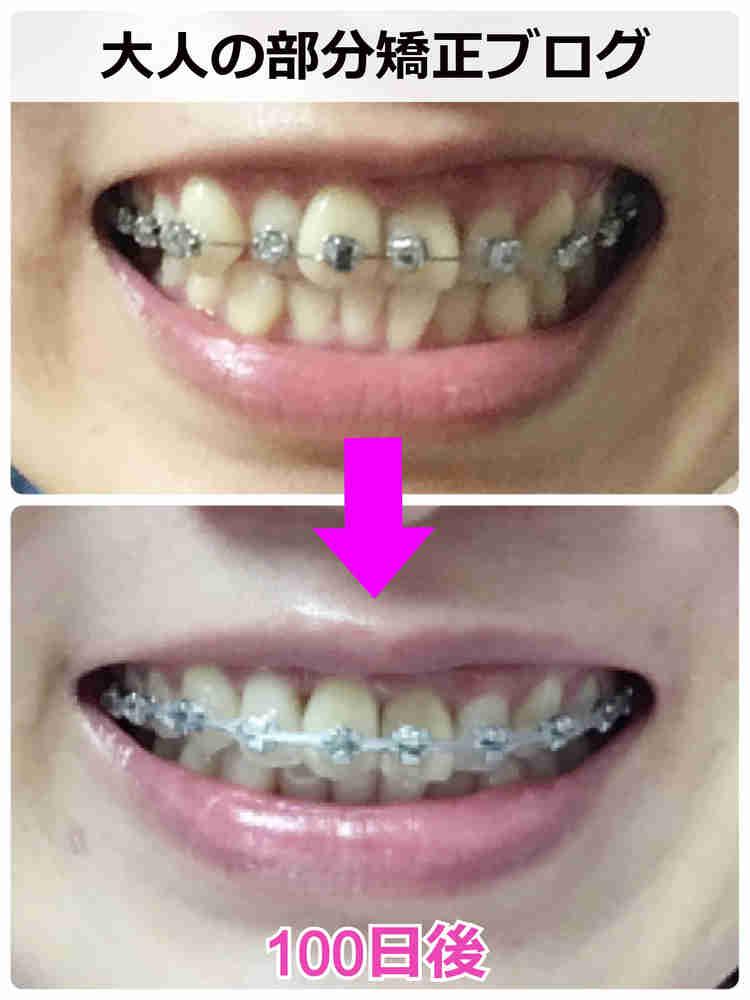 出っ歯の部分矯正ビフォーアフター【正面】