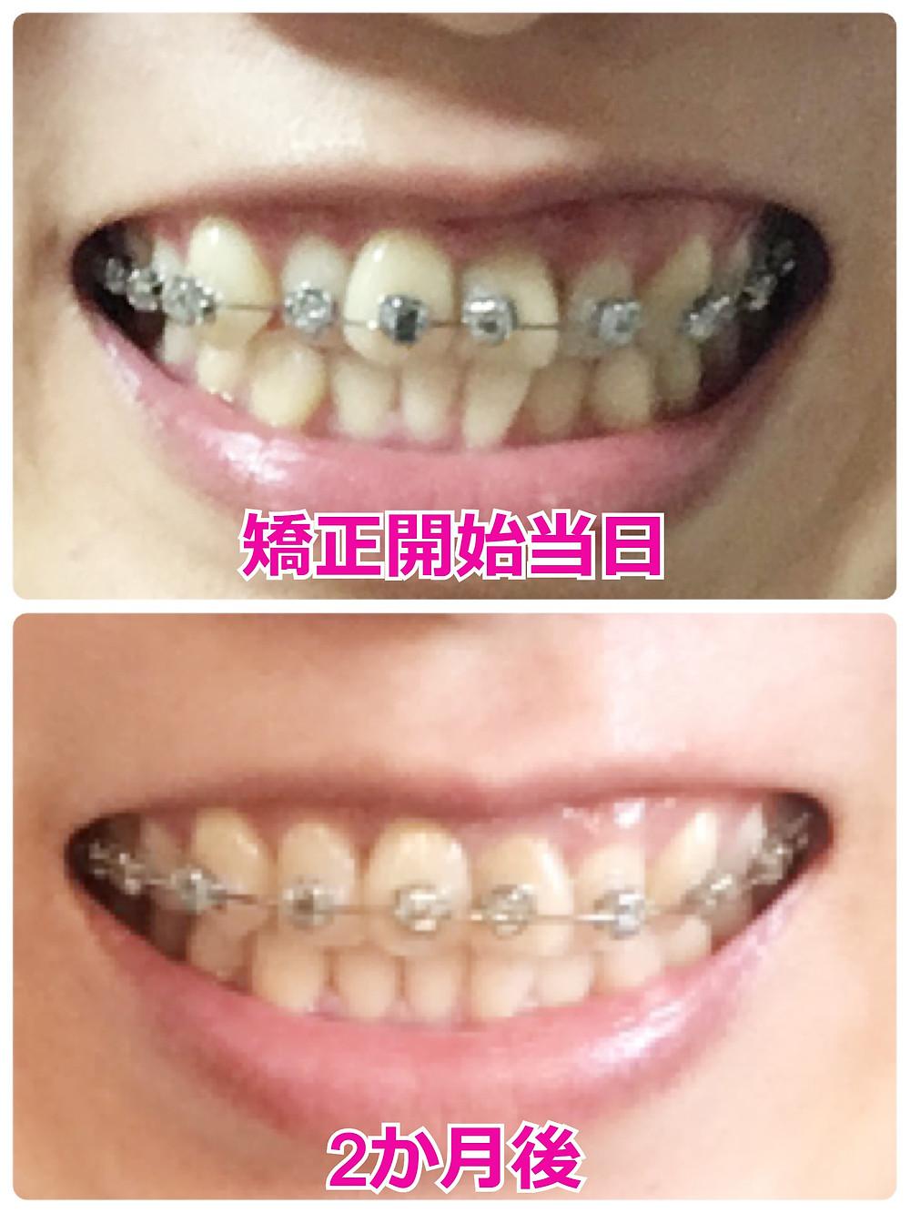 歯を抜かない歯列矯正のビフォーアフター【正面】