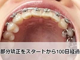 出っ歯矯正から100日【下からの歯列】