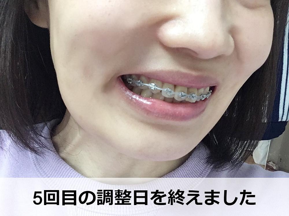 出っ歯矯正から100日【サイドから】