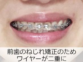 矯正ブログ 八重歯が引っ込んできた【2か月半経過】