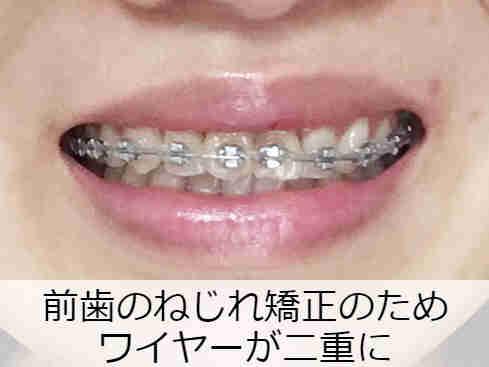 前歯のねじれ矯正のため二重に装着されたワイヤー