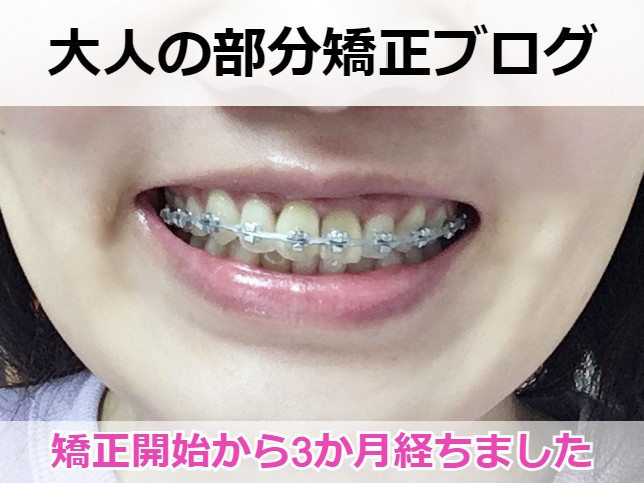 八重歯の部分矯正を始めて3か月経過