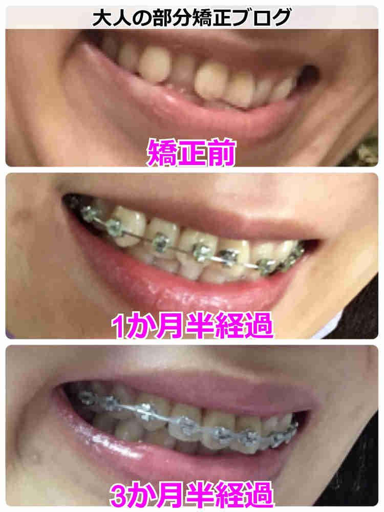 歯を抜かない矯正の経過【サイドから】