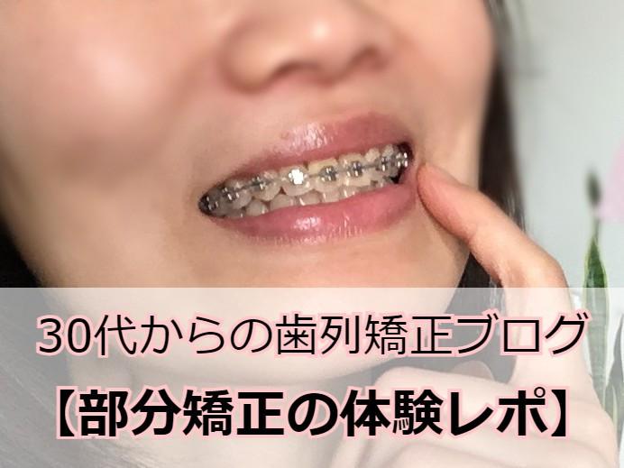八重歯の部分矯正中