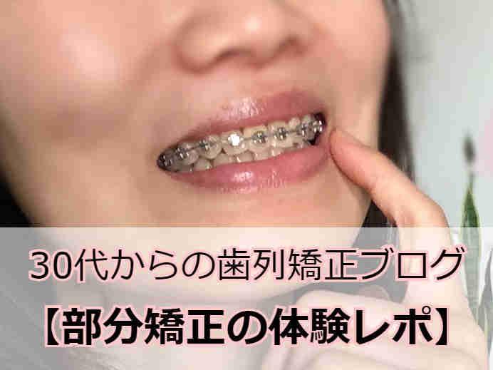 前歯の部分矯正中