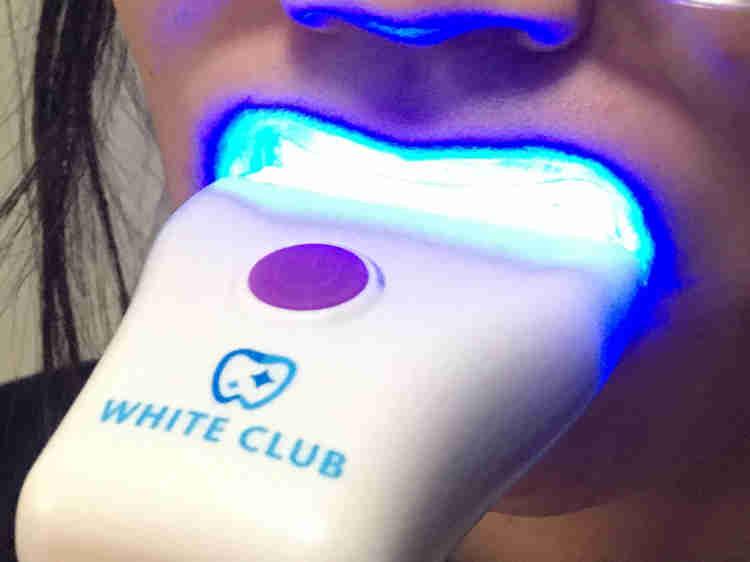 歯のホワイトニング中