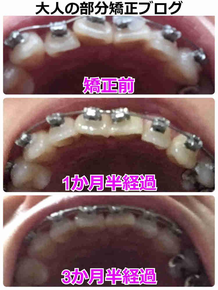 歯を抜かない矯正の経過【下からの歯列】