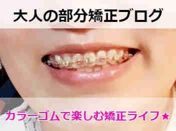 カラーゴムを装着中の歯(部分矯正中)