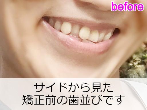 矯正前の出っ歯