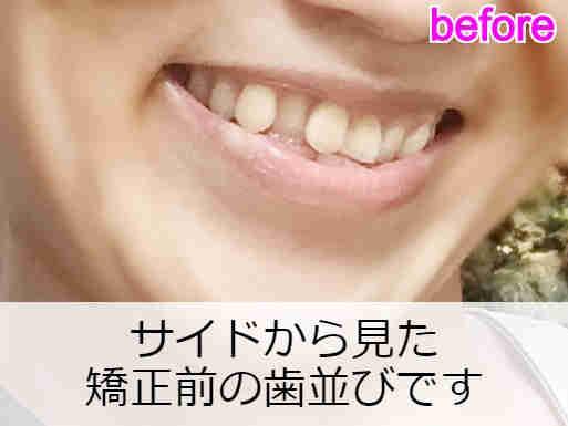 サイドから見た矯正前の歯並びの様子