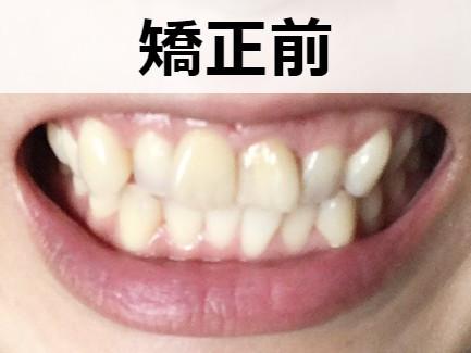 歯並び矯正前の様子【正面】