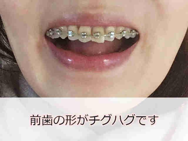 形と大きさが違う前歯