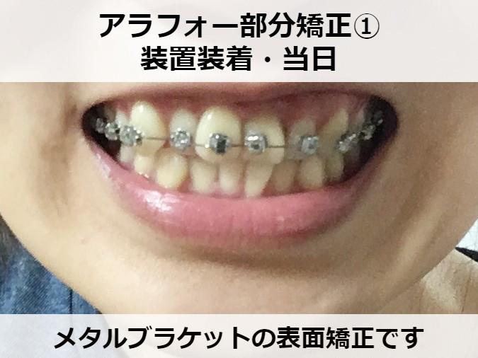 八重歯の部分矯正スタート ビフォー
