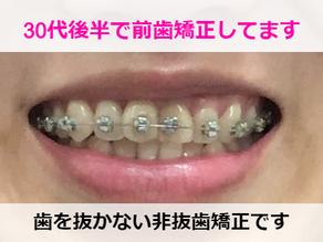 非抜歯矯正でどこまで綺麗になる?【1か月経過】