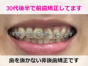 前歯のみ矯正している様子