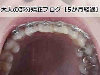 矯正スタートから5か月経過【下からの歯列】