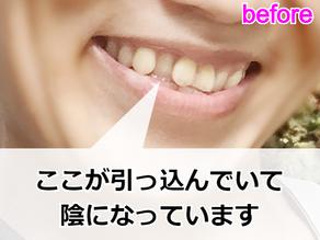 コンプレックスの歯並びをアラフォーで矯正中【レポ】