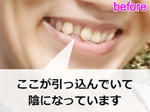 プチ矯正をする前の横顔(歯並び)
