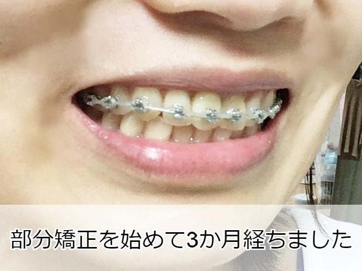 矯正開始から3か月経過した歯並び