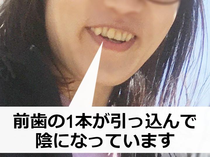 プチ矯正前【ビフォー写真】