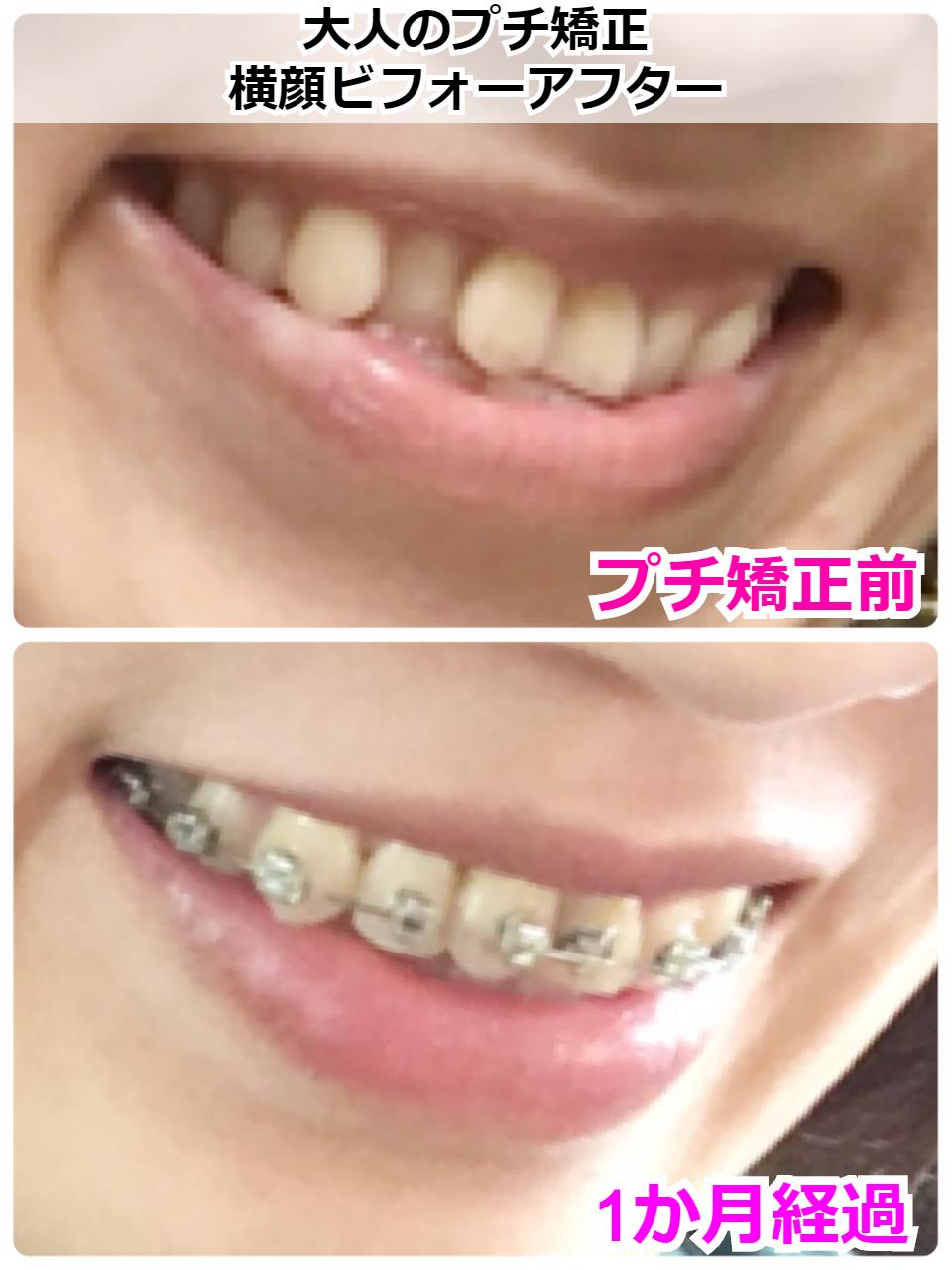 サイドからの歯並びビフォーアフター