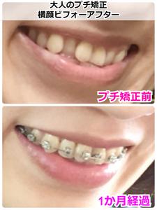 矯正スタートから1か月経過した歯並びのビフォーアフター