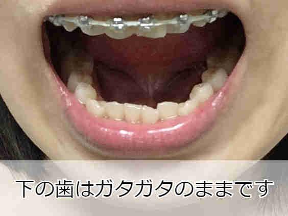 下の歯列は乱れたまま