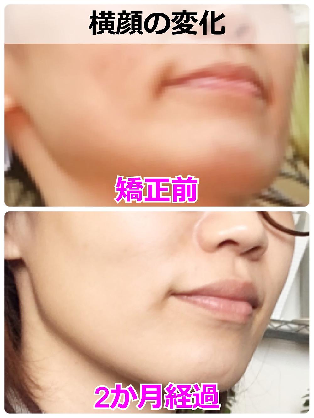 矯正前後の横顔
