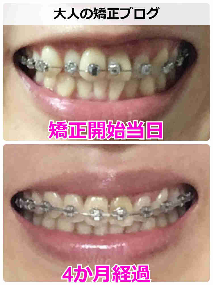 矯正スタートから4か月経過した歯並び