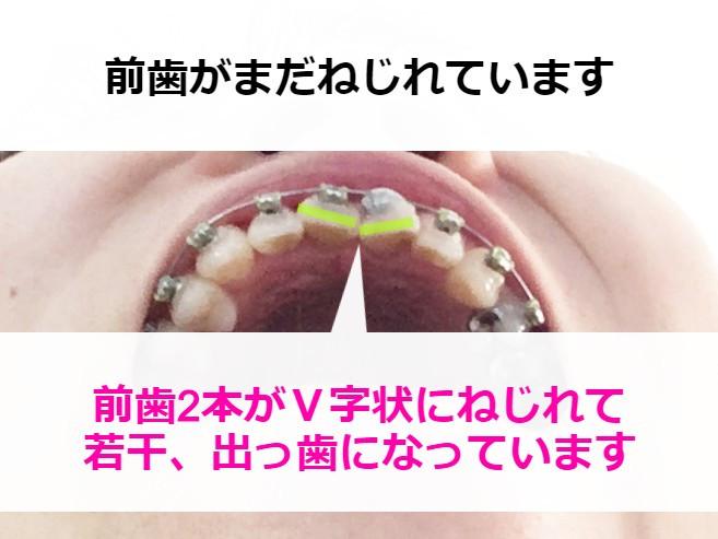 ガタガタの歯並びを矯正中【下からの様子】